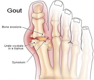 gout symptoms top of foot pain gout disease conditioning can high uric acid cause blood in urine